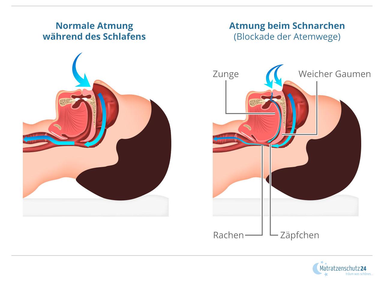 Vergleich der normalen Atmung während des Schlafens mit der blockierten Atmung beim Schnarchen