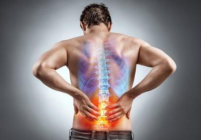Ischias-Schmerz: Symptome, Ursachen und Maßnahmen
